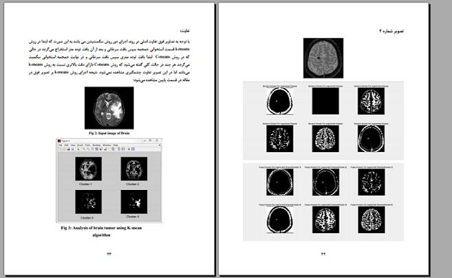 پروژه پردازش تصویر بررسی دو روش قطعه بندی