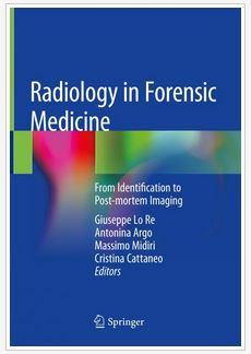 دانلود کتاب رادیولوژی در پزشکی قانونی از شناسایی تا تصویربرداری پس از مرگ Giuseppe Re