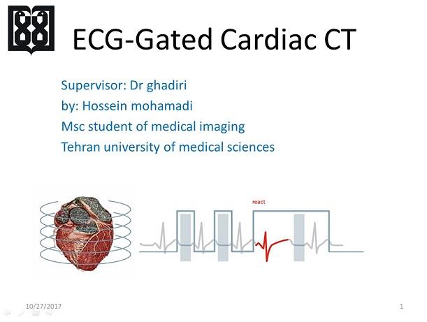 پاورپوینت سی تی اسکن قلب(cardiac gated CT scan)