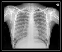 پاورپوینت آموزش رادیولوژی قفسه سینه