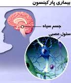 شناسایی بیماری پارکیسنسون