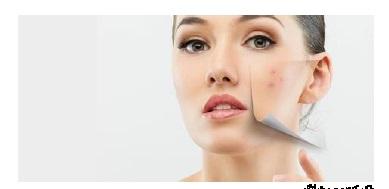 راه های طبیعی از بین بردن جوش صورت