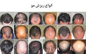 بروشور و ارائه آموزش و معرفی محلول رویش مو و توقف کامل ریزش موی دکتر نوروزیان به همراه تجویز مناسب