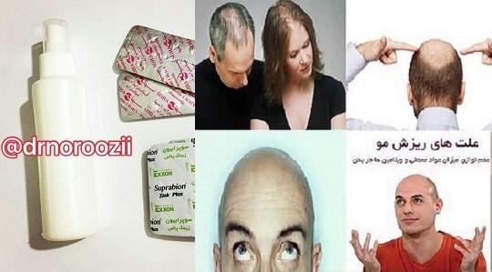 تونیک گیاهی جدید سال 1396,قرص و محلول رویش مو و درمان ریزش موی دکتر نوروزی با فرمول شگفتی ساز جدید