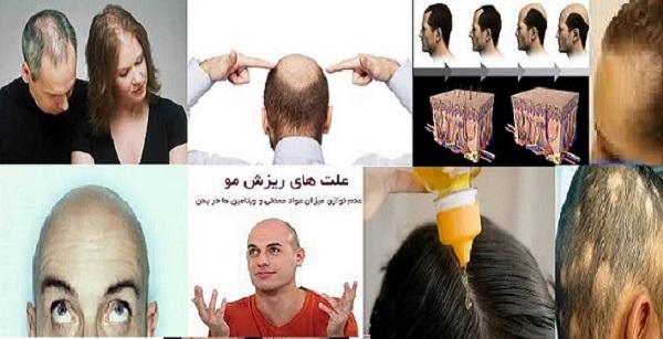محلول رویش مو جدید سال 1396,تونیک گیاهی و قرص رویش مو و درمان ریزش موی دکتر نوروزیان بافرمول شگفتی ساز