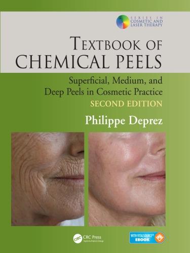 Textbook of chemical peels: superficial, medium, and deep peels in cosmetic practice