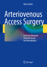 Arteriovenous Access Surgery: Ensuring Adequate Vascular Access for Hemodialysis