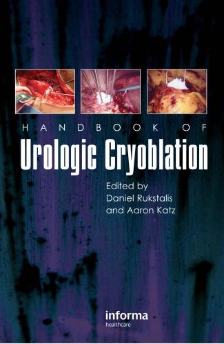 Handbook of Urologic Cryoablation