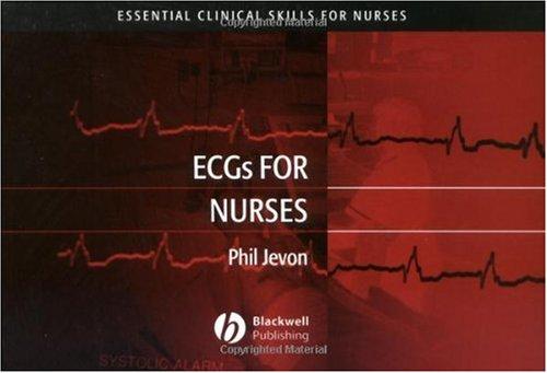 ECGs for Nurses (Essential Clinical Skills for Nurses)