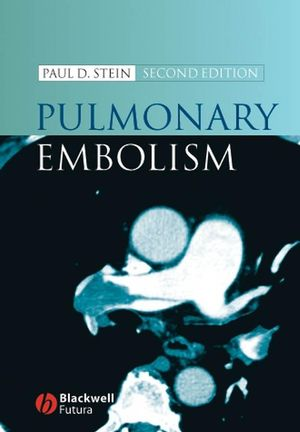 Pulmonary Embolism, Second Edition