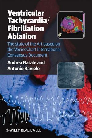 Ventricular Tachycardia/Fibrillation Ablation: The State of the Art Based on the Venicechart International Consensus Document