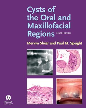 Cysts of the Oral and Maxillofacial Regions, Fourth Edition