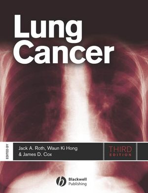 Lung Cancer, Third Edition