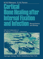 Cortical Bone Healing after Internal Fixation and Infection: Biomechanics and Biology