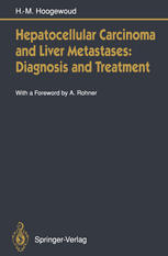 Hepatocellular Carcinoma and Liver Metastases: Diagnosis and Treatment
