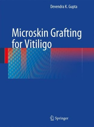 Microskin Grafting for Vitiligo