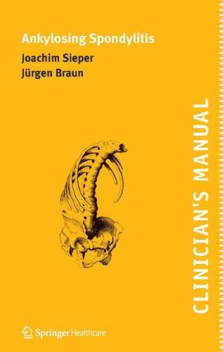 Clinicians Manual on Ankylosing Spondylitis