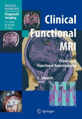Clinical Functional MRI: Presurgical Functional Neuroimaging (Medical Radiology   Diagnostic Imaging)