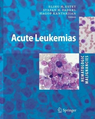 Hematologic Malignancies: Acute Leukemias