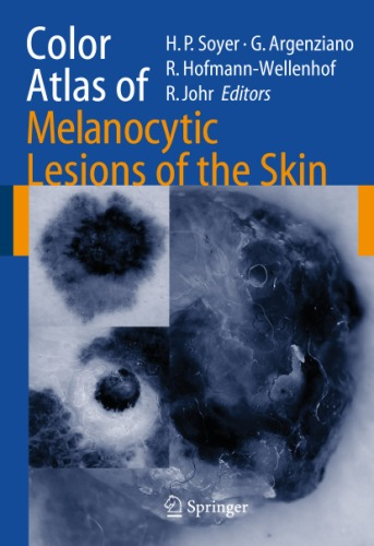 Color atlas of melanocytic lesions of the skin.