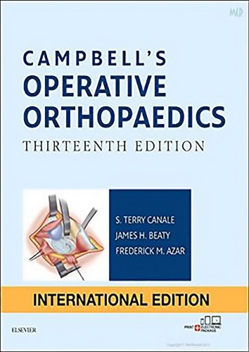 Campbells Operative Orthopaedics, 4-Volume Set