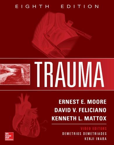 Trauma, 8E