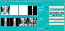 شبیه سازی برنامه پردازش تصاویر پزشکی در نرم افزار متلب