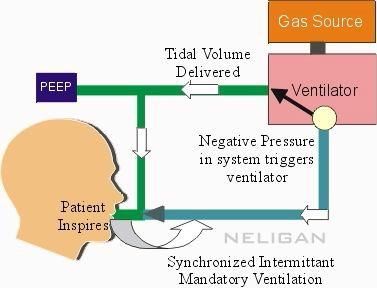 آشنائی با اصول تهویه مکانیکی در پزشکی