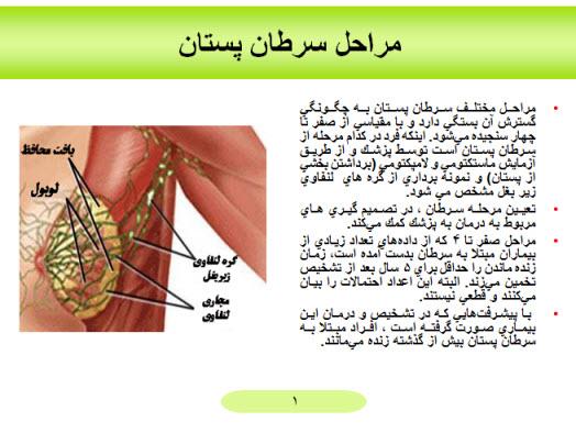 پاورپوینت مراحل سرطان پستان