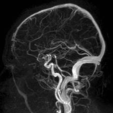 Brain-MRV