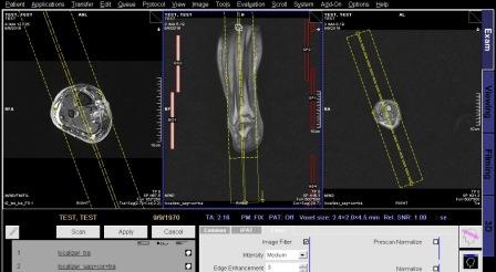 تکنیک MRI of LEG