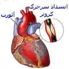 دیگرنیازی به عمل جراحی قلب و خطرات آن نیست
