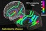 دانلود پاورپوینت اطلاعات كامل بیماری آلزایمر