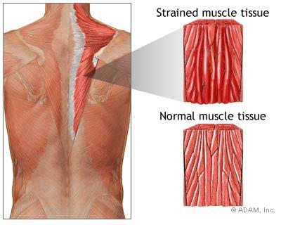 پاورپوینت کامل و جامع با عنوان آسیب های وارده به سیستم عضلانی - وتری در تربیت بدنی در 69 اسلاید