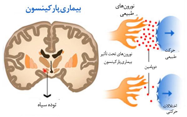 پاورپوینت کامل و جامع با عنوان بیماری پارکینسون (Parkinson) و روش های تشخیص و درمان در 60 اسلاید
