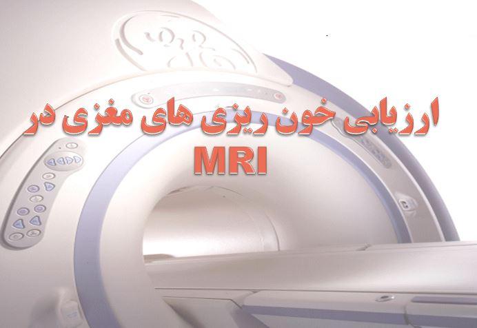 دانلود پاورپوینت ارزیابی خونریزیهای مغزی در MRI
