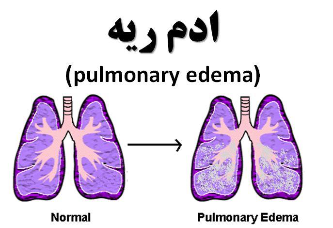 دانلود پاورپوینت ادم ریه(pulmonary edema)