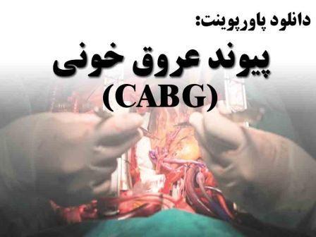 دانلود پاورپوینت پیوند عروق خونی(CABG)