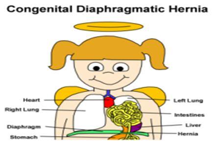 دانلود پاورپوینت فتق دیافراگماتیک مادرزادی(CDH)