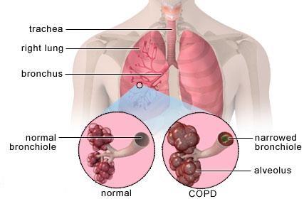 دانلود پاورپوینت بیماریهای مزمن انسدادی ریه(COPD)