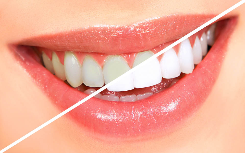 معجون شگفت انگیز برای سفید کردن دندانها