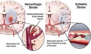 دانلود پاورپوینت  ارزیابی خون ریزی های مغزی در MRI در 27 اسلاید