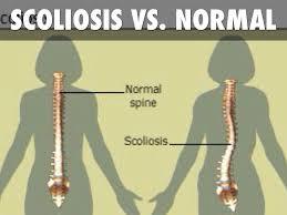 دانلود پاورپوینت اسکولیوزیس یا کج پشتی  SCOLIOSIS در 62 اسلاید کاربردی و کاملا قابل ویرایش