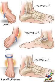 دانلود پاورپوینت آسیب مچ پا در 59 اسلاید کاربردی و کاملا قابل ویرایش