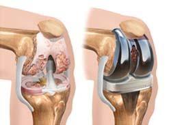 راهنمای بیماران برای تعویض مفصل زانو