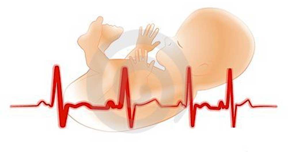 تفسیر NST و نوار قلب جنین