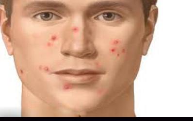 جوشهای پوستی و راههای درمان