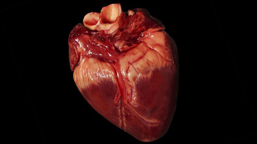 مجموعه کامل قلب و عروق