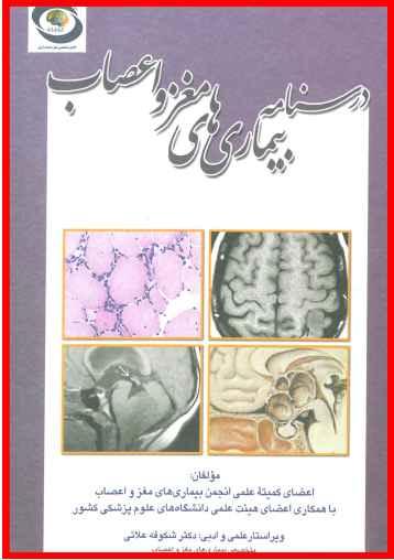 دانلود کتاب درسنامه بیماری های مغز و اعصاب