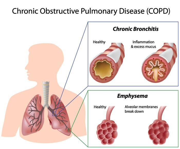 مقاله بررسی اثرات درمان با کورتیکواسترئید خوراکی روی پارامترهای اسپیرومتری در بیماری انسدادی مزمن ریوی